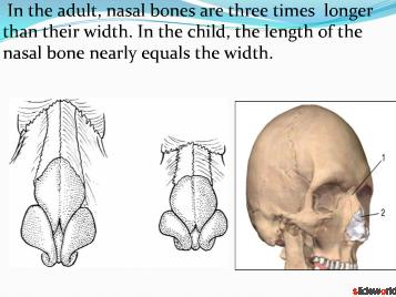 Nasal bone fracture