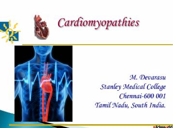 Cardiomyopathy