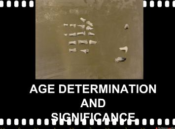AGE DETERMINATION OF HUMANS