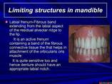 Anatomical landmarks of maxilla and mandible  with reference