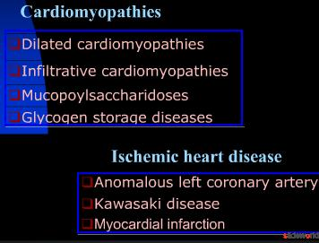 A case of cardiogenic shock