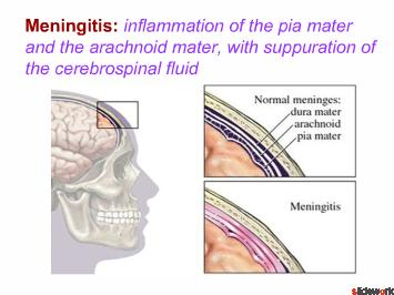 Meningitis-Management