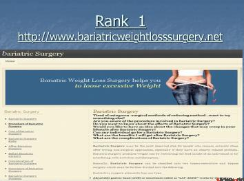 Top 5 bariatric weight loss surgery sites