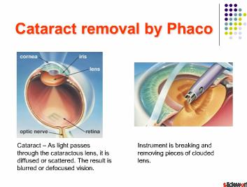 Learn PHACO, LASIK, GLAUCOMA  VR Surgery - Hands on Training in India