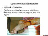 Basics of fracture management