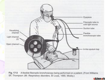 Critical Care Special Procedure