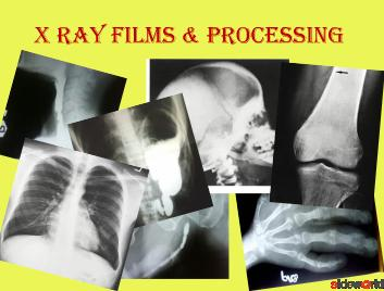 xray films  processing