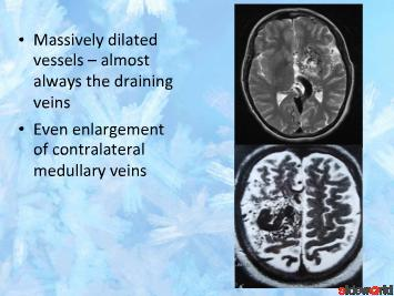 Intracranial Vascular Malformations