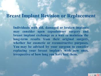 Dr Kris Reddy Reviews Breast Implant Exchange