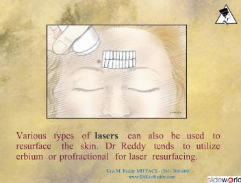Dr Kris Reddy Reviews Laser Resurfacing  Chemical Peels