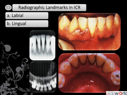 Radiographic Landmarks of Mandible Bone