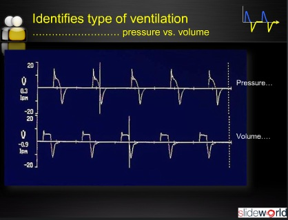Ventilator graphics in neonate