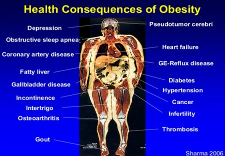 anaesthetic management of obesity and carcinoid
