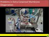 Problems in Extra Corporeal Membrane Oxygenation