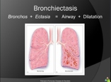 bronchiectesis