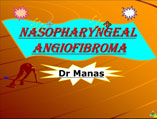 Nasopharyngeal angiofibroma ppt by Dr Manas