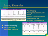 Basic Cardiac Pacing and AICD