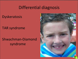 fanconi anemia powerpoint presentation