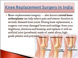 Knee replacement surgery