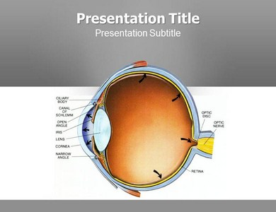 Glaucoma Surgery Powerpoint Templates