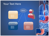 Ulcer powerPoint themes
