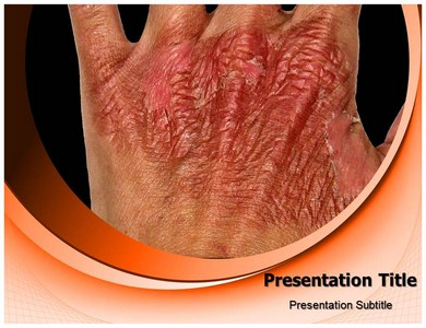Skin Burn Powerpoint Templates