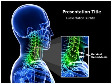 Cirvical Spondylosis Powerpoint Templates