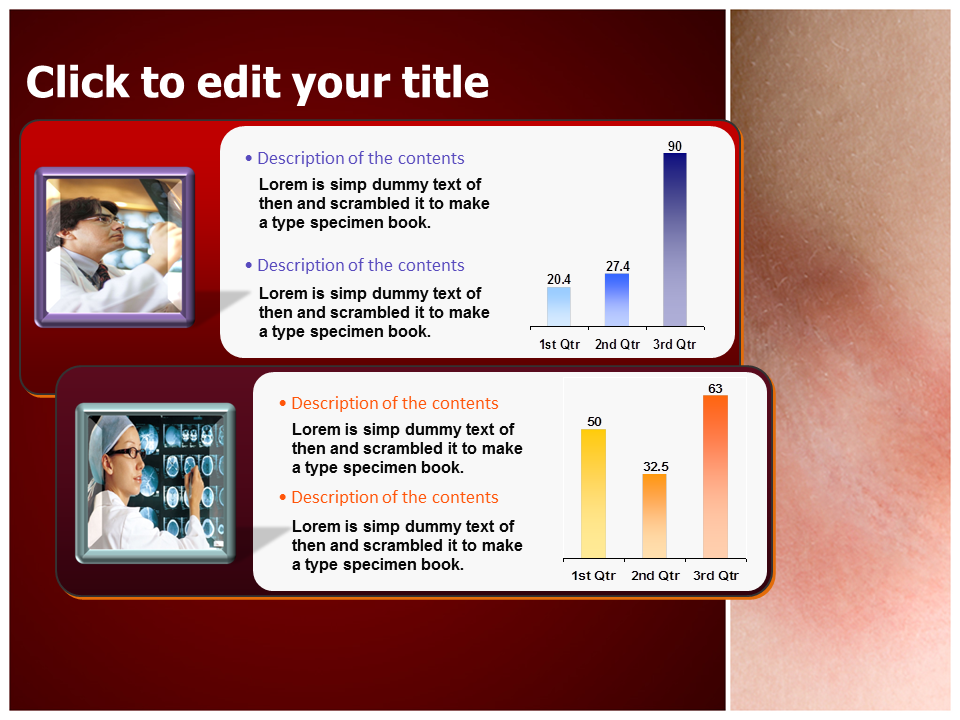 Yeast Infection Powerpoint Templates