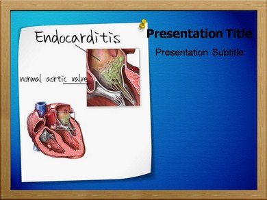Endocarditis Powerpoint Templates