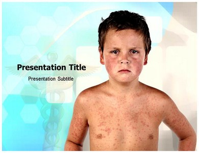 Child Disease Powerpoint Templates