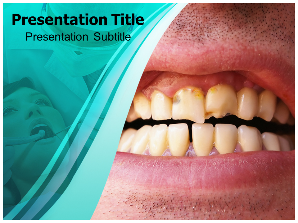 dental plaque powerpoint templates | dental plaque powerpoint, Modern powerpoint
