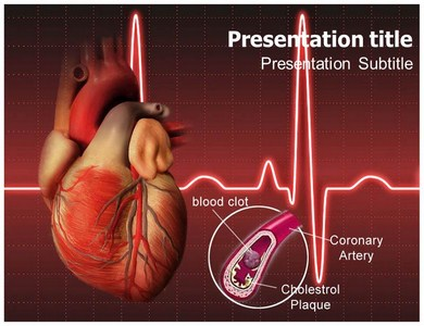 Coronary-Syndrome Templates For Powerpoint