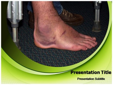 Edema Powerpoint Templates