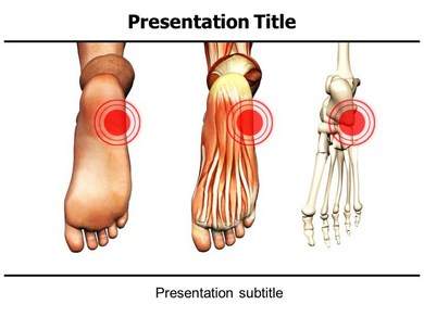 Orthopaedic Research Powerpoint Templates