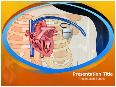 Pacemaker Surgery Powerpoint Templates