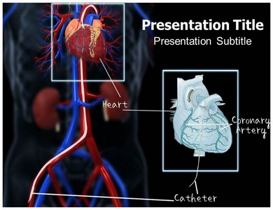 Catheterization Templates For Powerpoint