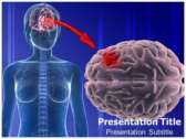 Glioma Causes powerPoint template