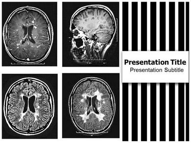 Multiple Sclerosis Powerpoint Templates