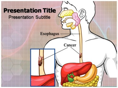 Esophageal Cancer prognosis Powerpoint Templates