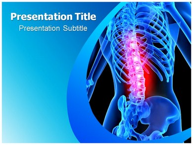 Spinal Tumor Powerpoint Templates