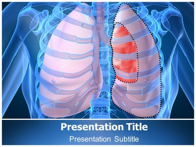 Pneumothorax X Ray Powerpoint Templates
