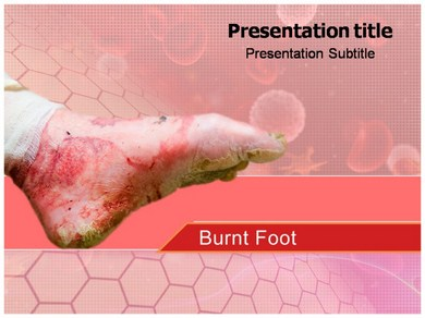 Burn Injuries Powerpoint Templates