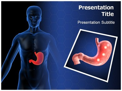 Ulcer Symptoms Powerpoint Templates
