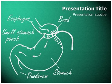 Gastric Band Powerpoint Templates