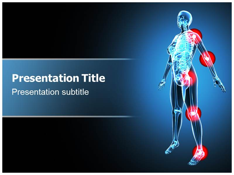 Arthritis X Ray Ppt Powerpoint Templates Body Arthritis