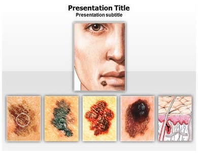 Skin Cancer Treatment Powerpoint Templates