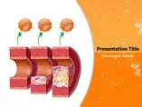 Atherosclerosis - Powerpoint Templates