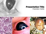 PPT Templates for Nephrotic Syndrome