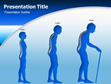 Powerpoint Templates on Osteoporosis Symptoms