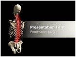 Osteoporosis research Powerpoint